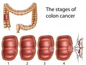 Colon_cancer stages (courtesy Wiki Commons)