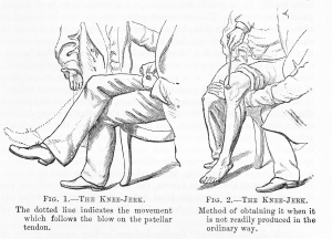 'Knee_Jerk'_from_W_R_Gowers'_Manual_of_Diseases_of_the_Nervous_System_1886