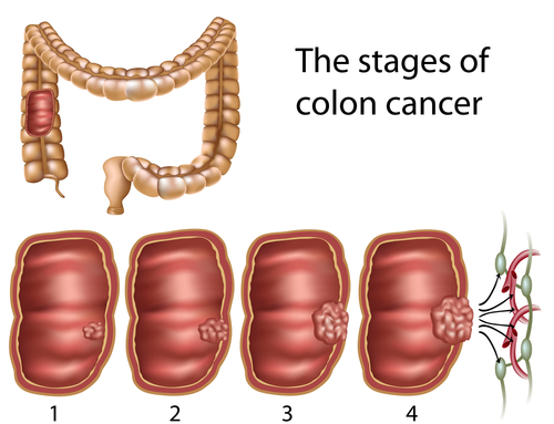 Alberto Martin Carbohydrates And Colon Cancer Me And My Diabetes